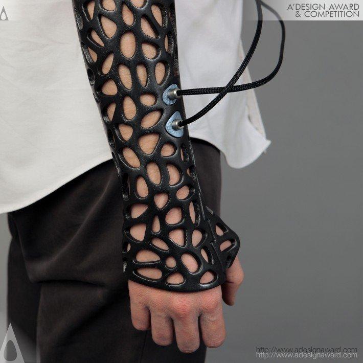 Exoesqueleto impresso em 3D, substituto ao Antigo Gesso!!!